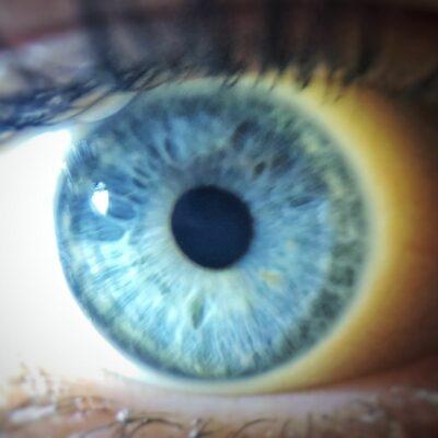 iride-linfatica-azzurra-francesca-valmassoi